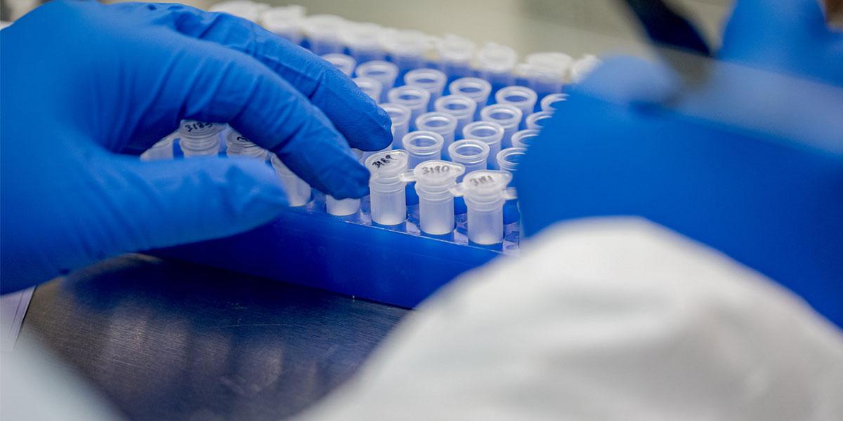 In vitro diagnostics tray during COVID-19
