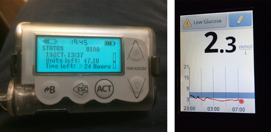 t1d-normality
